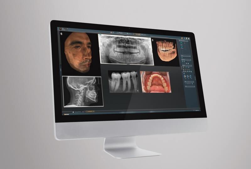 Zähne und Kiefer in 3D